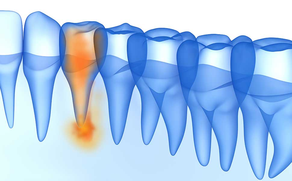 Endodontische (Zahnwurzel-) Behandlung