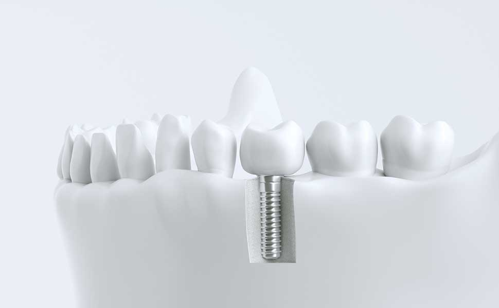 Implantologie_Zahnimplantate und festsitzender Zahnersatz