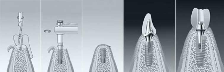 Ablauf einer Implantatbehandlung/Zahnimplantate