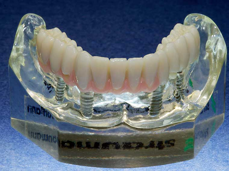 Zahntechnisches Meisterlabor, Prothese mit Implantat