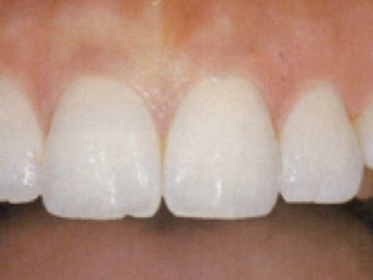 Gesundes Zahnfleisch/Parodontosebehandlung