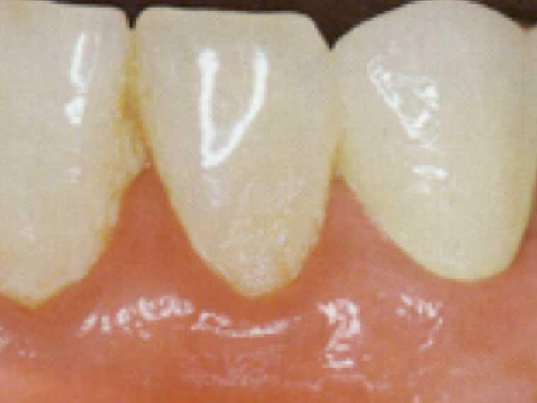 Entzündetes Zahnfleisch (Gingivitis)/Parodontosebehandlung